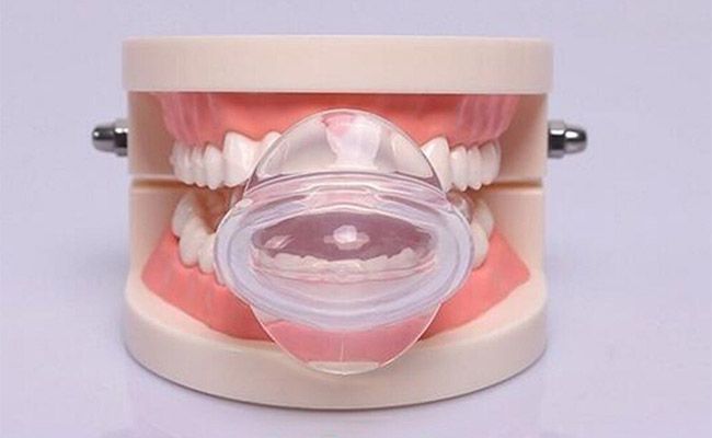 How Tongue Retainer Device works