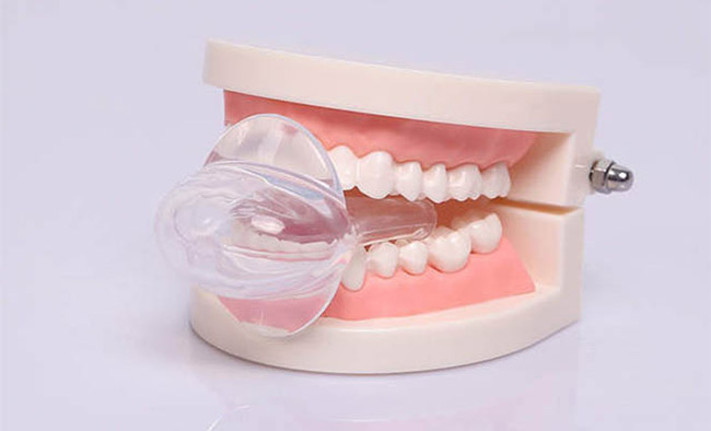 Tongue Retainer Device sample