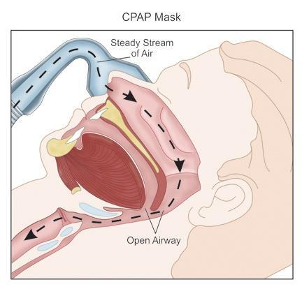 How CPAP Masks work
